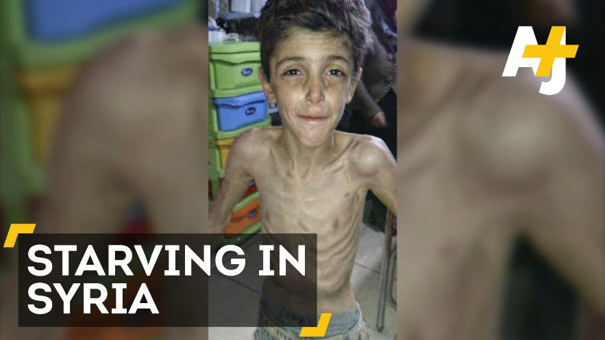 Madaya - Forgotten by the Media, Ongoing in Syria -
